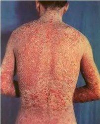 初期银屑病的症状